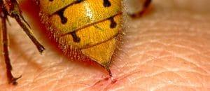 alergia-a-picaduras-de-insectos-5