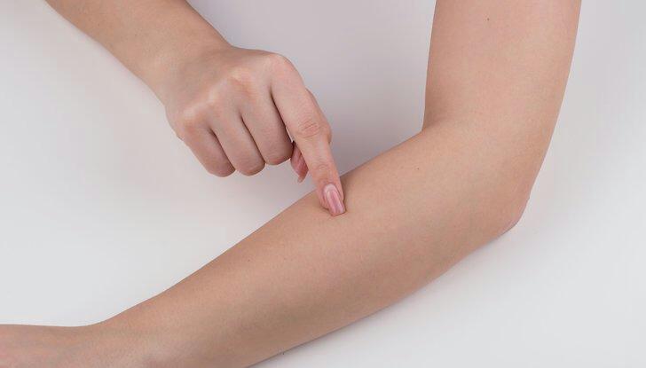 los agujeros en la piel con gusanos 9