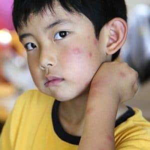 Alergia a las picaduras de mosquitos en niños trato