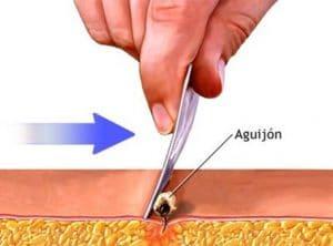 Las alergias a las picaduras de abejas; como retirar el aguijón