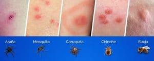 alergias por picaduras de insectos 4