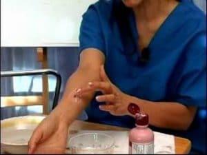 alergias por picaduras de insectos 5