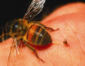 alergia-por-picadura-de-insectos-8