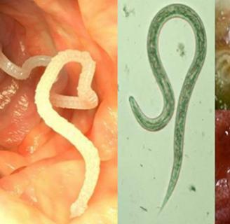 lombrices intestinales: Síntomas, tratamiento, remedios caseros y más