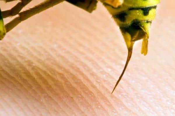 picadura de avispa