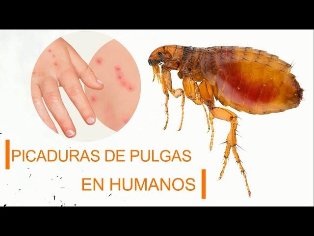 soñar con pulgas