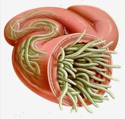 de que se alimentan las lombrices intestinales