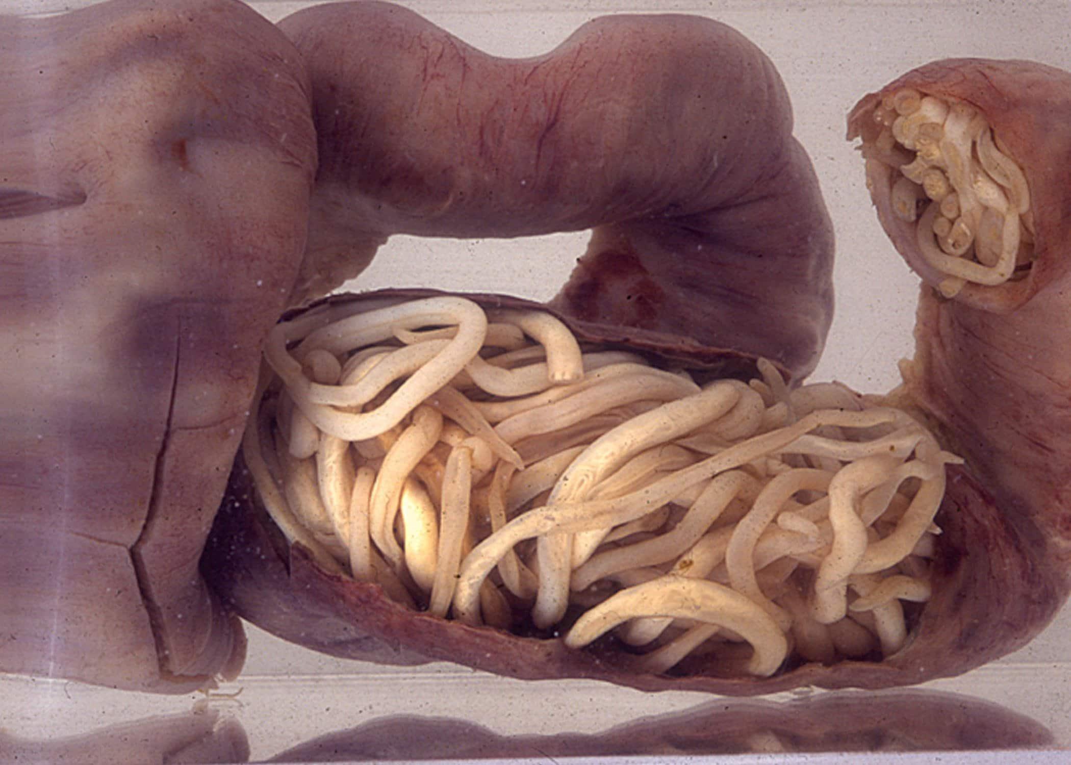 lombrices o gusanos intestinales