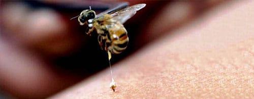 que-hacer-cuando-te-pica-una-abeja-9
