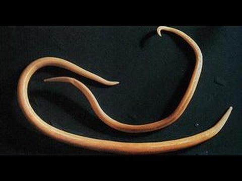 Lombrices-o-gusanos-de-tierra17